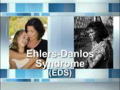 What Is Ehlers-Danlos Syndrome? danlo awar, ehlersdanlo syndrom, ehlers danlos syndrome, ehlersdanlo mysteri, ehler danlo