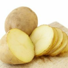 burn remedies  Potatoes work, draws the heat out of the burn #PinsIveTried