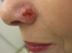 Part I of our series on Skin Cancer