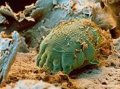 Scabies treatment http://HomeRemediesforScabies.com A female can lay upto 30 eggs, then dies at end of burrow