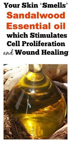 stimul cell, sandalwood essential oil, wound heal, essential oils, skin smell, essenti oil