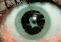 Persistent pupillary membrane (PPM) is a condition of the eye involving remnants of a fetal membrane that persist as strands of tissue crossing the pupil
