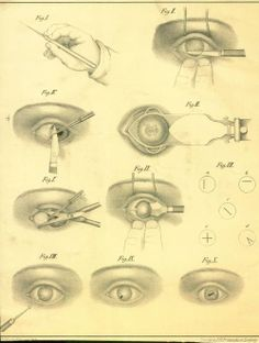 From the James Moores Ball Ophthalmology collection. See: http://pinterest.com/pin/287386019943119248/ & http://pinterest.com/pin/287386019943119247/