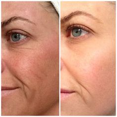 Great results with Nerium!  www.rstibbens.nerium.com