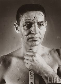 Terry Sawchuk – The face of a hockey goalie before masks became standard game equipment, 1966