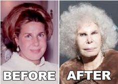 The Duchess of Alba - before and after plastic surgery.