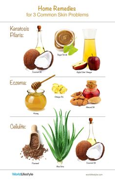 """Home Remedies for the Most Common Skin Problems: keratosis pilaris (""""chicken skin""""), eczema, and cellulite"""