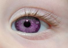 """Alexandria's Genesis, also known as """"violet eyes"""" (a mutation). When someone is born with Alexandria's Genesis, his eyes are blue or gray at birth. After six months, the eyes begin to change their original color to purple, and it lasts six months. During puberty, the color deepens to dark purple, a purple color, a royal purple, or blue-violet and remains so. It does not affect a person's vision, and women that are born with this genetic mutation do not menstruate, but are fully fertile."""