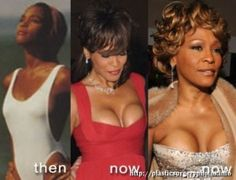 Whitney Houston several years ago had a breast augmentation and implants but does not look very large, these are very obvious because of its slim figure. In this before and after Whitney Houston can be seen that the shape of silicon actually stresses in its skin. Implants are usually a very round