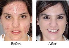 Organic Acne Skin Care Products