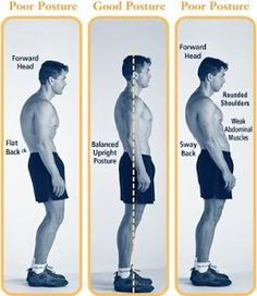 Exercise to Correct Posture Problems & Muscle Imbalance