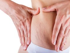 Top 10 Ways to Get Rid of Stretch Marks Fast