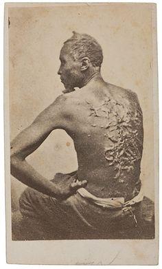 ESCAPED SLAVE GORDON, RARE CDV PORTRAIT