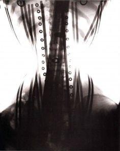 corset x-rays | Xray corset