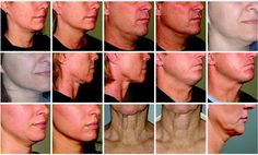 How to get rid of turkey neck? Ultherapy Non-Surgical Skin Tightening - Dr. Paul Frank  http://www.focusonstyle.com/beauty/how-to-get-rid-of-turkey-neck-ultherapy-non-surgical-skin-tightening-dr-paul-frank/  #antiaging #beauty #lookingyounger