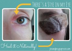 how to get rid of eye stye in one day