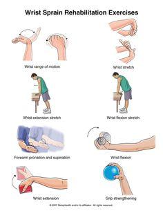 Wrist sprain exercises.
