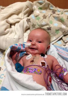Amazing smile from a 10 week old baby after open heart surgery…