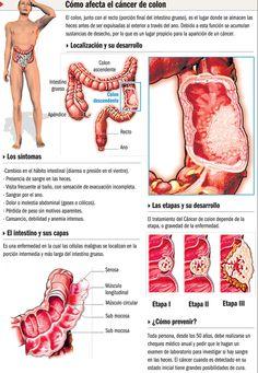 Cancer de colon #infografia