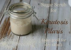 A DIY sugar scrub with coconut oil that is really smoothing out my keratosis pilaris. Also great for dry skin, in general!