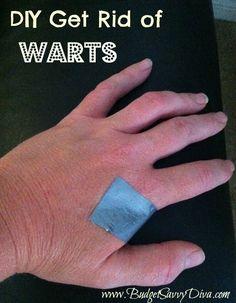 DIY Get Rid of Warts