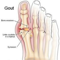 Arthritis is a  mature  condition that manifests in a number of ways such as in gout, osteoarthritis, and rheumatoid arthritis Many home remedies for arthritis are on the market. We GIVE you FIVE methods to stop the PAIN http://www.indetails.com/72/five-methods-to-eventually-stop-gout-pain/