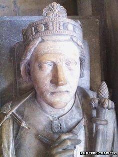 Richard the Lionheart's mummified heart analysed