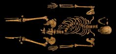 The skeleton of King Richard III, who ruled for 26 months in the mid-15th century, and was killed at the Battle of Bosworth Field. Henry Tudor, Earl of Richmond claimed the throne as Henry VII