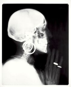 Meret Oppenheim, 1964, X-ray of a Skeleton