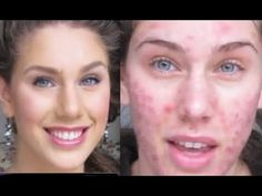 Teen Model has severe acne and scarring but shows you how to use foundation to cover it up and get a wonderful clear skin look! Brilliant
