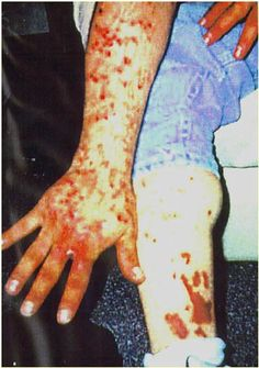 "a man with infected sores from scratching his ""meth mites"""