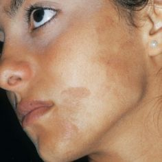 Best Home Remedies For Hyperpigmentation