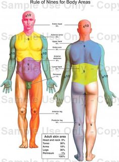 Rule of 9's For Body Areas 4.6.13