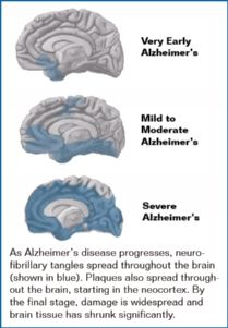 Changes in the Brain in Alzheimer's Disease  -  Alzheimer's disease is an irreversible, progressive brain disease that slowly destroys memory and thinking skills, and eventually even the ability to carry out the simplest tasks. In most people with Alzheimer's, symptoms first appear after age 60. Estimates vary, but experts suggest that as many as 5.1 million Americans may have Alzheimer's disease.