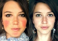 Tips on how to control rosacea skin problems.