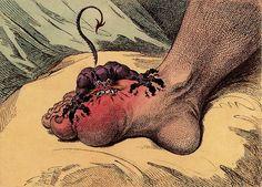 The Gout / James Gillray (1799)