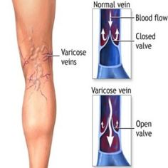 Natural Treatments For Varicose Veins.