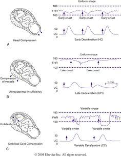 Figure 85-4 Patterns of periodic fetal heart rate (FHR) deceleration....