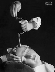 """TREPANATION: This """"therapy"""" holds that insanity is caused by demons lurking inside the skull. Boring a hole in the patient's head creates a door through which the demons can escape, and – viola! – out goes the crazy."""