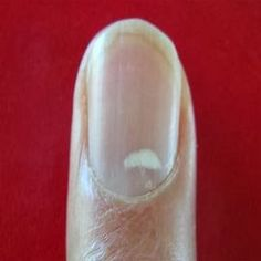 How to Remove White Marks on Finger Nails