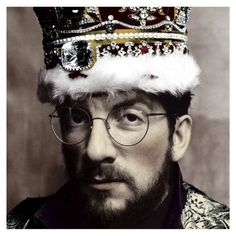 Elvis Costello - King Of Doucebags.