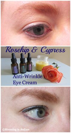 Rosehip Cypress Anti-Wrinkle Eye Cream- DIY Essential Oil Anti-Wrinkle Eye Cream- Rosehip: anti-aging & Cypress: skin tightening. AMAZING Before/After PICS!