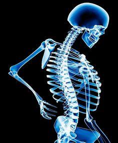Skeleton to illustrate back pain story.fml-M382448-Back_pain-SPL.jpg