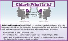 Chiari Malformation: What is it? The basics of this rare disorder.