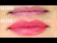 How To Get Plumper, Fuller Lips Without Lip Injections