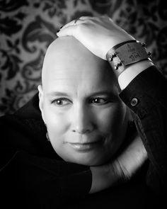 women bald and beautiful - Google Search