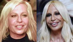 plastic women | Celebrity Plastic Surgery Before & After Photos And Quotes