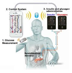 Bionic Pancreas System Graphic..by 2015 a dual chambered pump that distributes insulin and glucagon or symlin