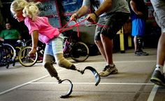 Kids who've lost limbs find kinship at Camp No Limits (The Spokesman-Review)