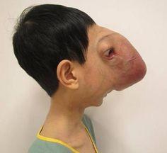 A rare facial deformity